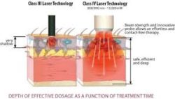 Use of LASER in Physiotherapy